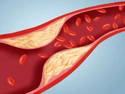 诱发高血压、动脉硬化