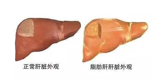脂肪肝到肝癌成因